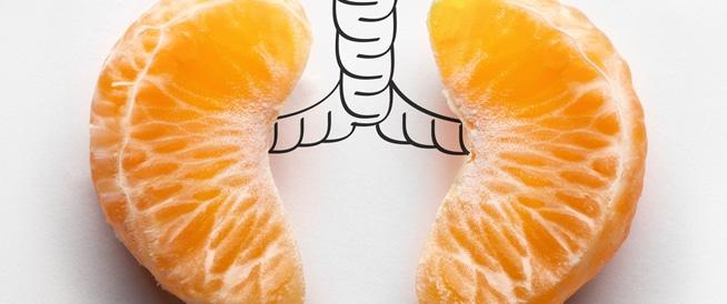 سرطان الرئة: تجنب هذه الأطعمة كي تقلل من فرص الإصابة شاركغرد